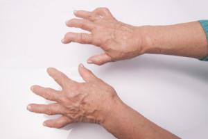 revmatoidni artritis
